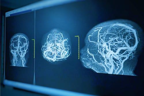 Beyinde Kılcal Damar Tıkanıklıkları
